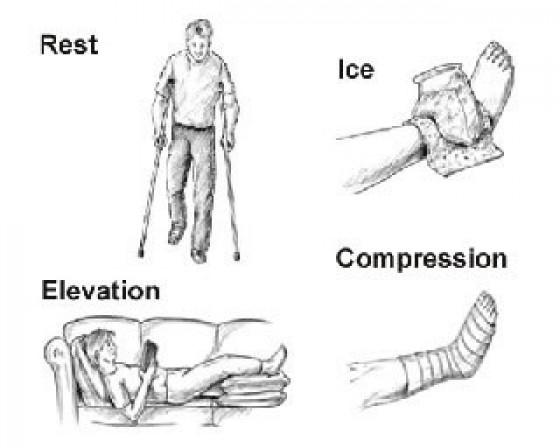 ¿Conoces el método RICE? Trata tus lesiones desde el primer instante